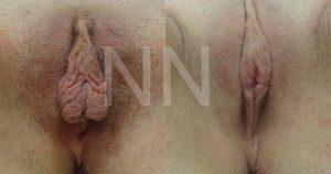 Labiaplasty2