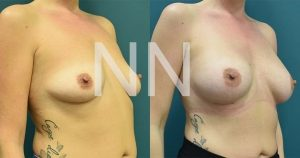 breast-augmentation-12