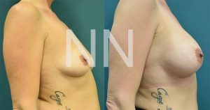 breast-augmentation-13