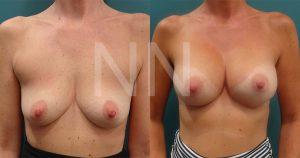 breast-augmentation10