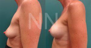 breast-augmentation12