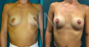 breast-augmentation13