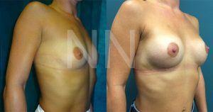 breast-augmentation14