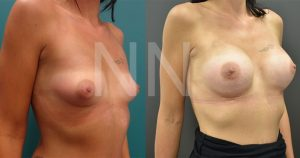 breast-augmentation17