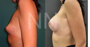 breast-augmentation18