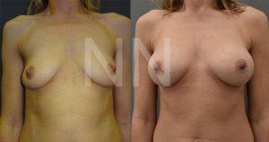 breast-augmentation19