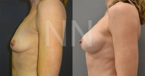 breast-augmentation21