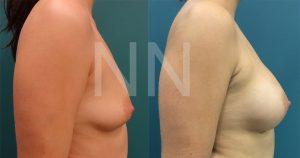 breast-augmentation3