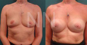 breast-augmentation4