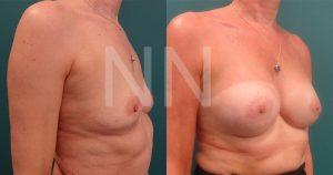 breast-augmentation5