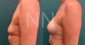 breast-augmentation6