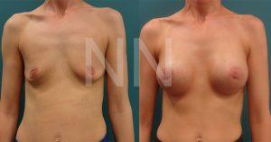 breast-augmentation7