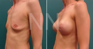 breast-augmentation8
