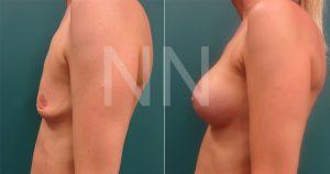 breast-augmentation9