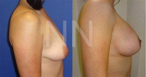 breast-lift-3