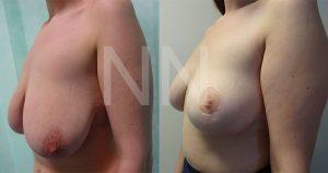 breast-lift-5
