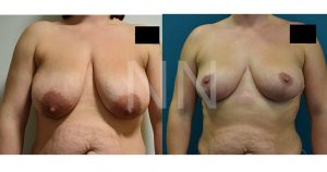 Breast reduction before after 1-min