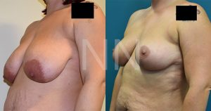 Breast reduction before after 2-min