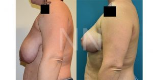 Breast reduction before after 3-min