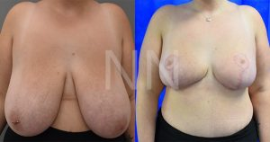 Breast reduction before after 6-min