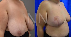 Breast reduction before after 7-min