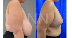 Breast reduction before after 8-min