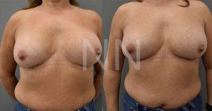 Corrective breast surgery 1-min
