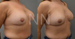 Corrective breast surgery 2-min