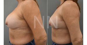 Corrective breast surgery 3-min