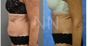 abdominoplasty 100
