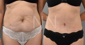abdominoplasty 44