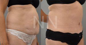 abdominoplasty 55