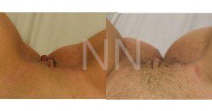 labiaplasty 5-min