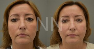 Upper Blepharoplasty 4
