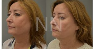 Upper Blepharoplasty 5