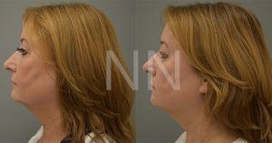 Upper Blepharoplasty 6
