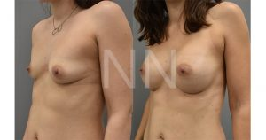 breast augmentation before after 2-min
