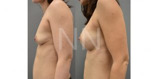 breast augmentation before after 3-min
