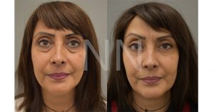 lower blepharoplasty-1