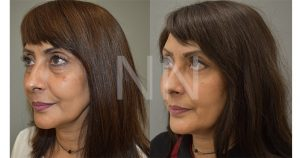 lower blepharoplasty-2