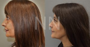 lower blepharoplasty-3