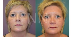 upper blepharoplasty 1