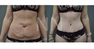 abdominoplasty 31-min