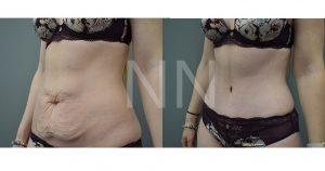 abdominoplasty 32-min