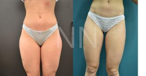 liposuction 21-min
