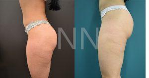liposuction 22-min