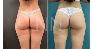 liposuction 23-min