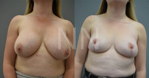 removal of implants 1