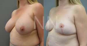 removal of implants 2