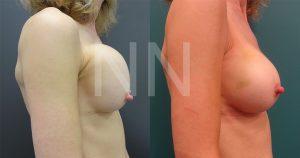 Corrective-Breast-Surgery3